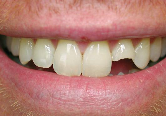 Resultado de imagen de urgencias dentales