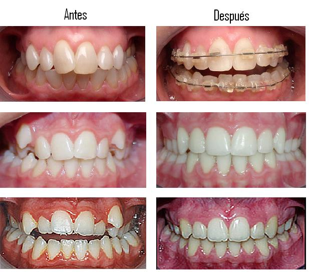 Especialidades dentales en concepci n amedent clinica dental for W de porter ortodoncia